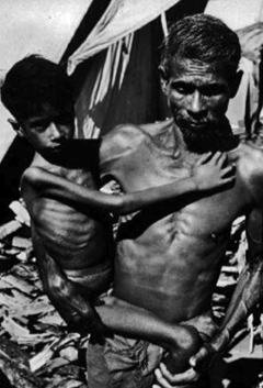 Child suffering with Marasmus (extreme emaciation) in India: Photograph courtesy of the CDC